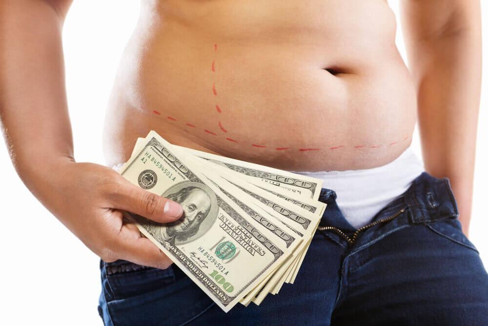 שאיבת שומן בלייזר מחיר