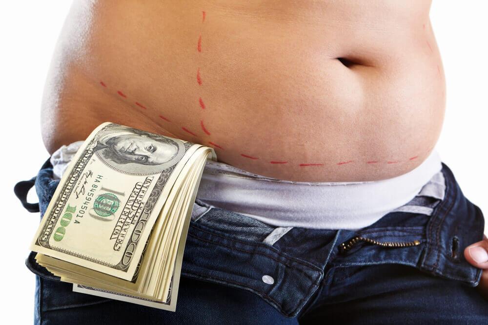 כמה עולה שאיבת שומן