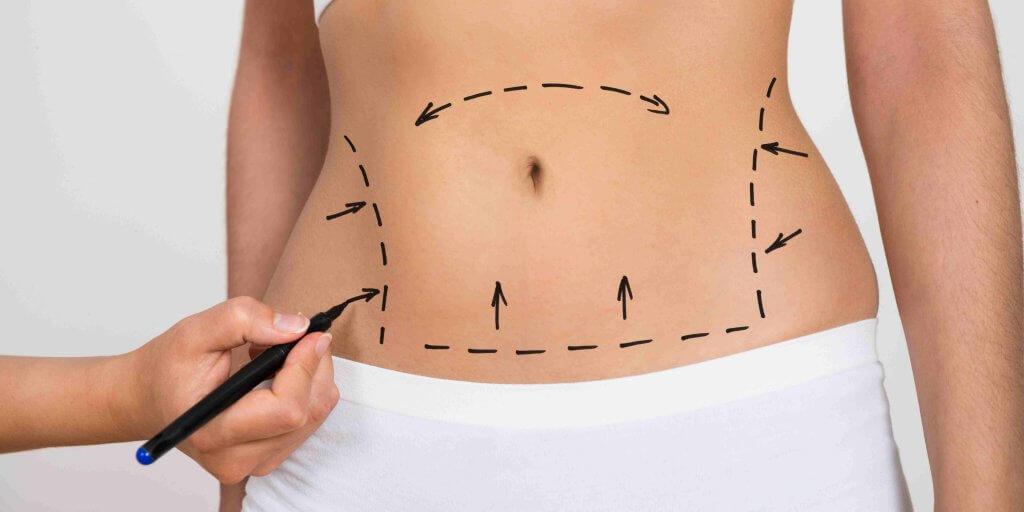 איפה אפשר לעשות שאיבת שומן מהמותניים